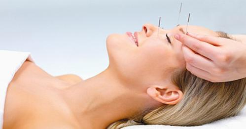 cosmetic-acupuncture-499x261